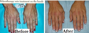 Sclerotherapy Hands Before After Label