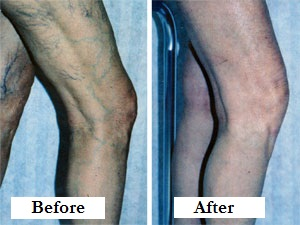 Spider vein treatment before and after pic