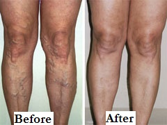 Varicose Veins Legs Before After Label