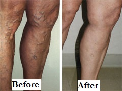 Vericose Veins Side Before After Label